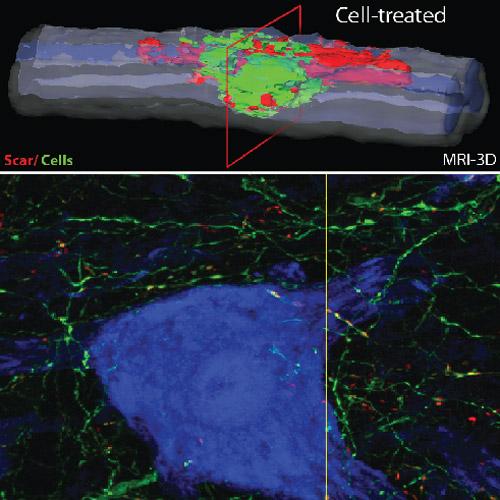 Stem cell repair